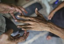 A leprosy inflicted patient being examined in Mumbai   Dhiraj Singh/Bloomberg