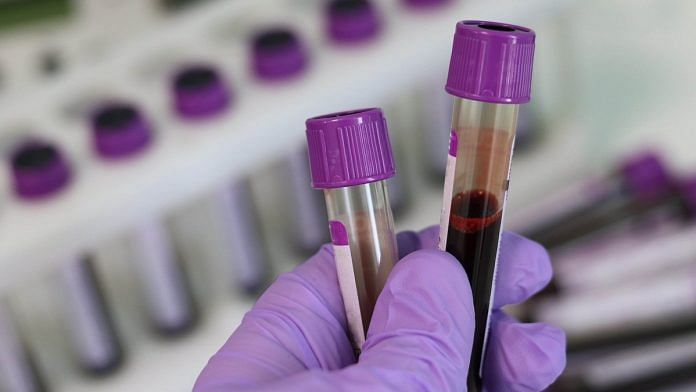 United Kingdom to pilot blood test capable of detecting 50 types of Cancer