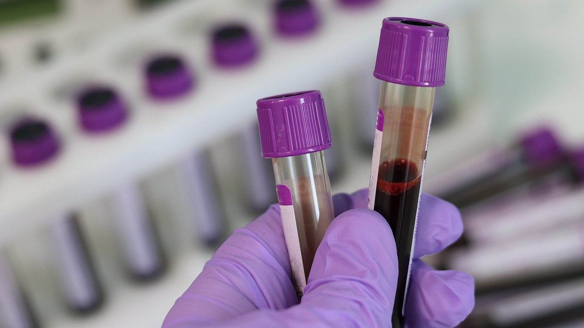 UK to trial 'game-changer' blood test that 'may detect 50 types of cancer' at early stage