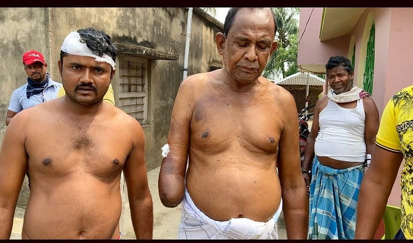 Bholanath Santra (right) at Hijolna village. Seven of his family members were allegedly attacked. He also lost his left leg and right hand to allegedly CPI(M) atrocities   Photo: Madhuparna Das/ThePrint