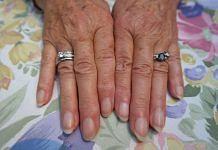 Fingernails | Pixabay