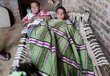 Two boys suffering from dengue at their home in Firozabad's Nagla Amaan village | Shubhangi Misra | ThePrint